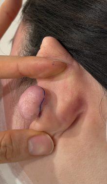 耳のケロイド 裏面