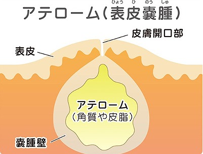 粉瘤(アテローム)の定義とは