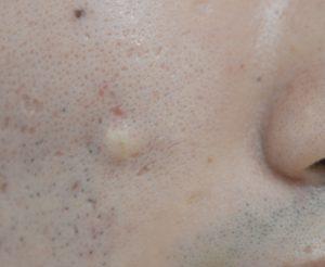 右頬の粉瘤