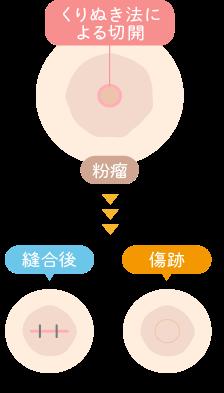 くりぬき法による粉瘤手術
