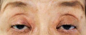 左の挙筋腱膜が瞼板から外れた状態