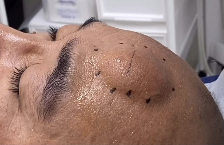 前額部の脂肪腫
