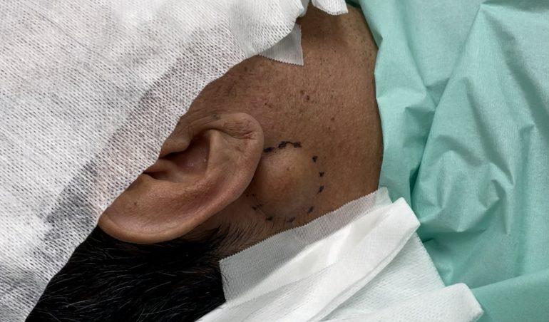 首の脂肪腫