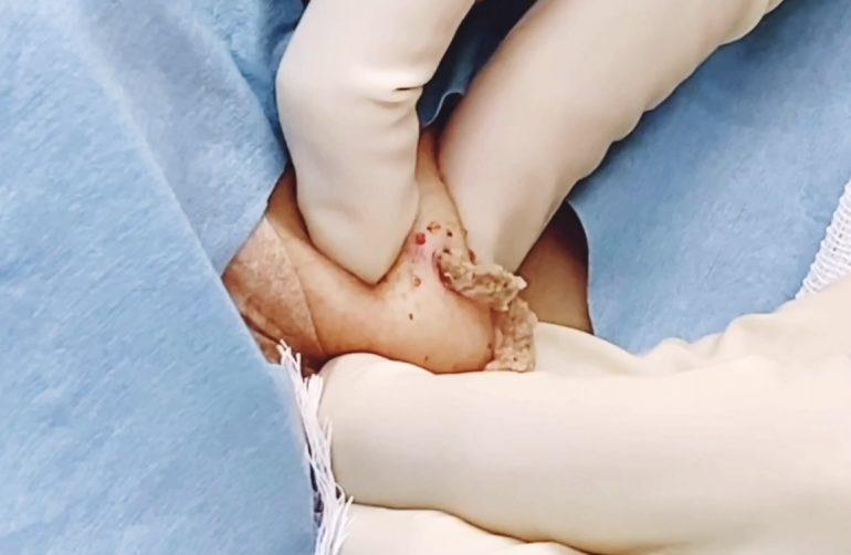 首の粉瘤 術中画像