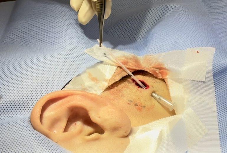 石灰化上皮腫