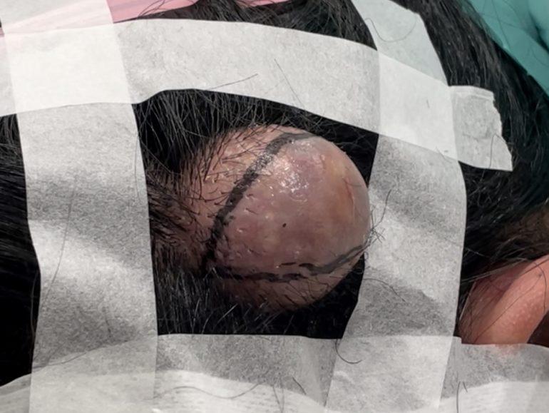 頭部の粉瘤 切開ライン