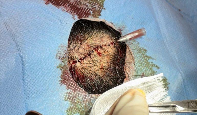 頭部粉瘤 閉創時