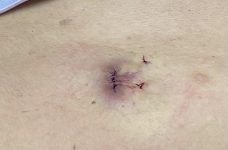 炎症した粉瘤