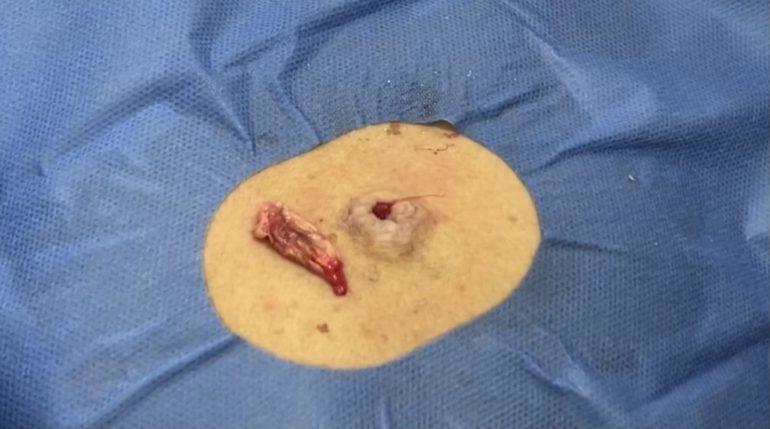 背部の粉瘤 摘出
