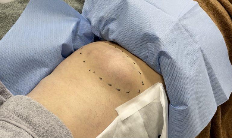 大腿部の粉瘤